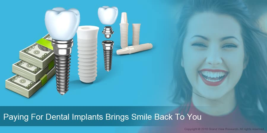 Paying For Dental Implants Brings Smile Back To You